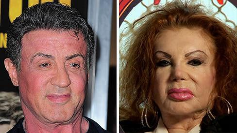Kvůli plastikám jsou si Sylvester a jeho matka Jackie Stallone zase o kus podobnější...