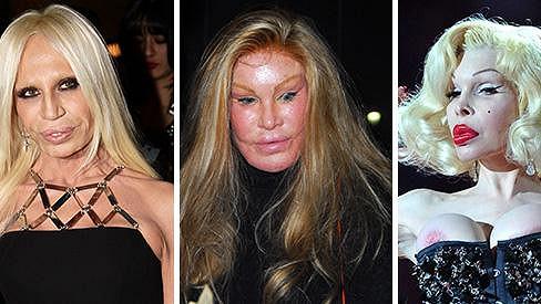 Oběti plastických operací Donatella Versace, Jocelyn Wildenstein a Amanda Lepore.