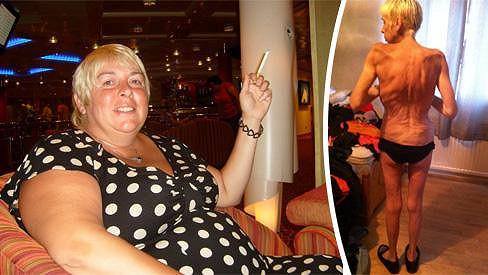 Julie Dunbar před operací a v době své extrémní štíhlosti.