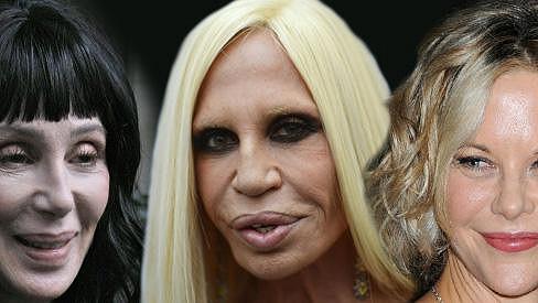 Cher, Donatella a Meg - tři z dlouhé řady milovnic chirurgických zákroků.