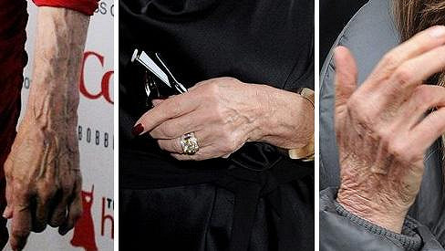 Ruce věk prozradí nemilosrdně....