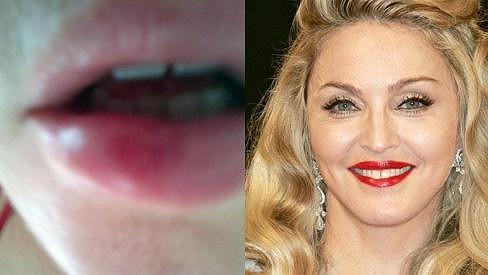 Madonna a její zranění.