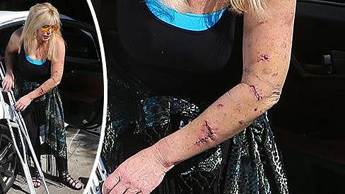 Pamela Bach-Hasselhoff navštívila v neděli lékaře.