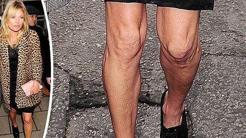 Tělo Kate Moss dostalo v minulosti pořádně zabrat.