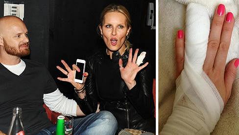 Simona Krainová má zanět v prstu.