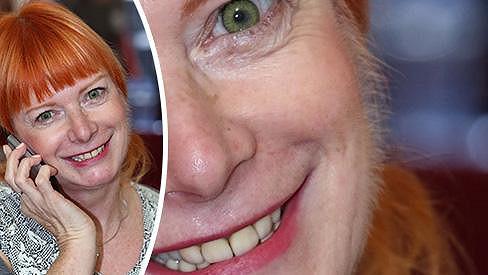 Bára Štěpánová má na tváři přerostlé chloupky.