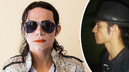 Brazilský imitátor Michaela Jacksona prodělal už řadu plastik.