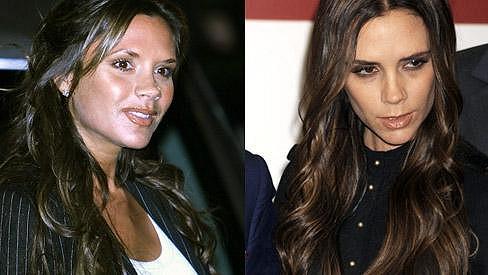 Victoria dříve a dnes s propadlými tvářemi a unaveným vzhledem.