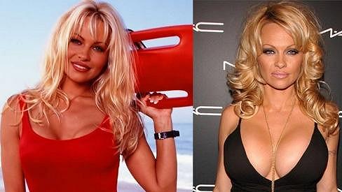 Pamela Anderson před třiadvaceti lety a dnes.