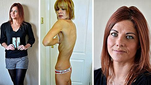 Leanne McKillop je dnes opět na zdravé váze.