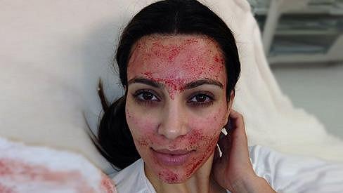 Kim Kardashian po zákroku.