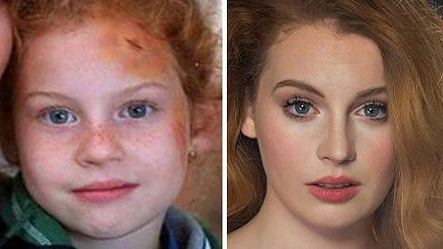 Lucie Šteflová ve svých šesti letech a nyní v osmnácti