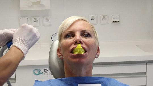 Kateřina Kornová měla trauma ze svých zubů.