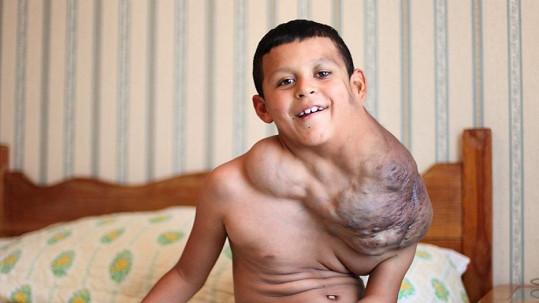 Joseho trápí obří nádor.