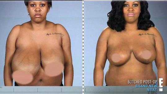 Plastická operace ženě srovnala ňadra.