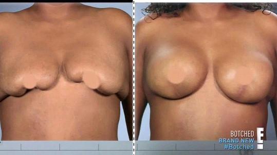 Chanel může opět ukazovat prsa.