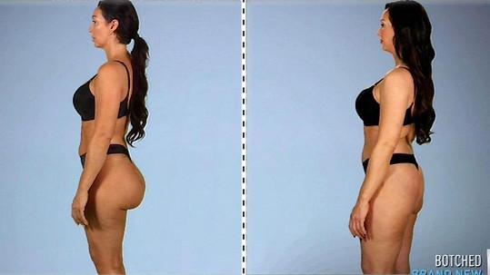 Jana Stoner před a po operaci
