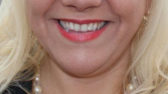 To jsou zuby!
