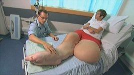 Mandy Sellars trpí syndromem, který způsobuje atypický růst kostí, kůže či hlavy.