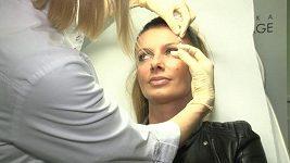 Alice Bendová botox