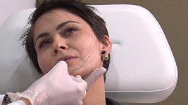 Vlaďka Erbová si nechala zpevnit obličej pomocí speciálních nítí
