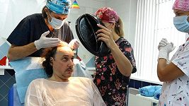 Marian Vojtko - transplantace vlasů