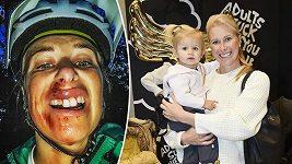 Andrea Sestini Hlaváčková po děsivé nehodě.